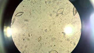 Cristales de Acido Urico en Sedimento Urinario al Microscopio