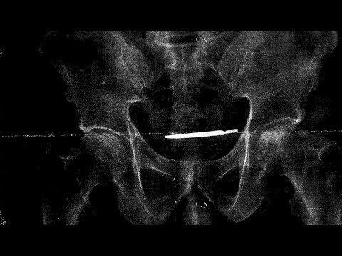Quên dao mổ trong người bệnh nhân, bệnh viện ở Connecticut bị kiện