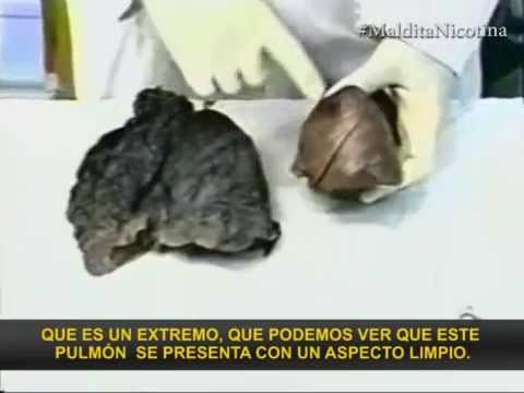 Comparacin de un pulmn sano con el de un fumador  YouTube