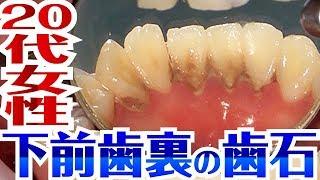 【20代女性】下前歯裏の歯石[Tartar removal]歯石除去Vol.8(下門牙內側牙石去除)