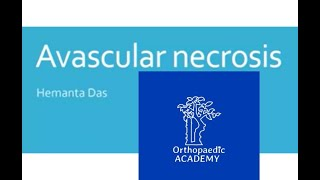 Avascular necrosis of the hip.
