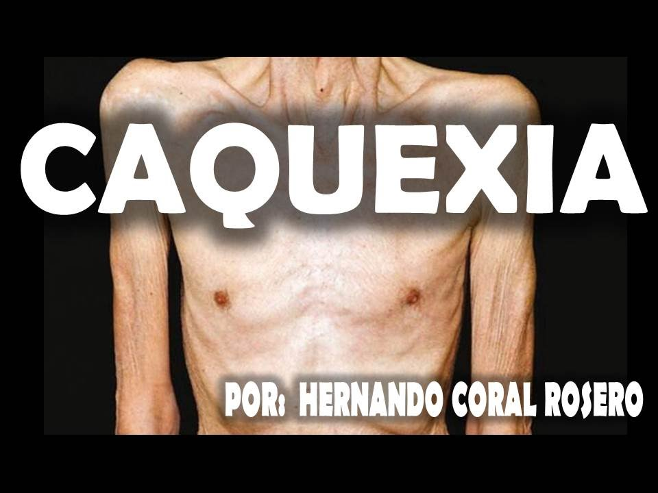 CAQUEXIA - PÉRDIDA DE PESO Y MASA MUSCULAR Y PÉRDIDA DE