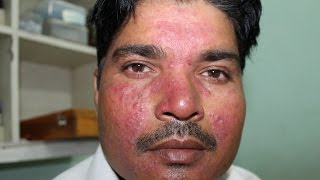 Acne Roacea of 9 years cured by Homeopathy  Dr Ravi Singh