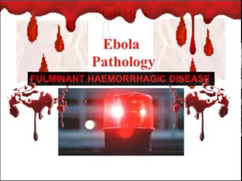 Ebola,the African Disaster, By Prof Ahmed Abd Ellatif Abo Madyan