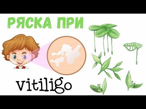 Ряска от витилиго, лечебные свойства, как применять.