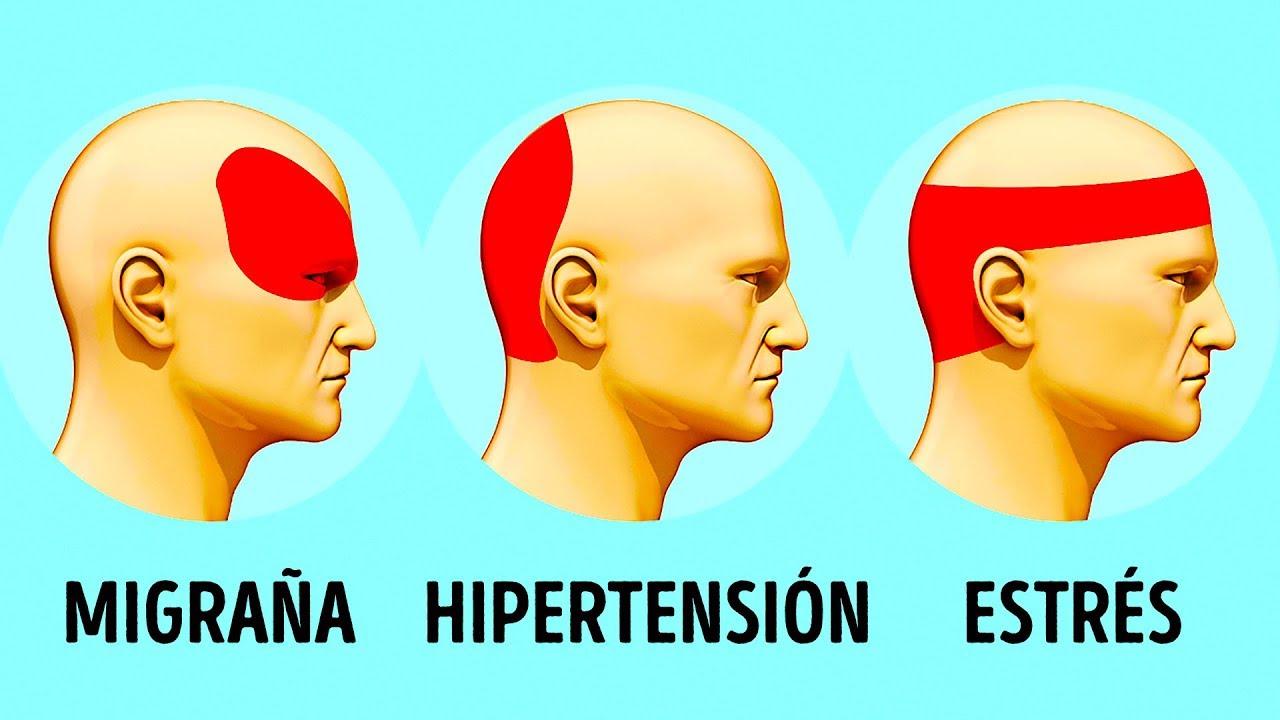 Cómo deshacerse de los dolores de cabeza por tensión de ansiedad