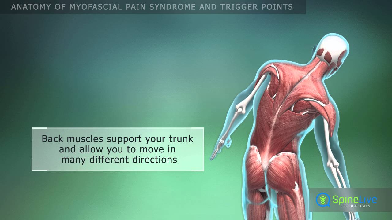 Myofascial pain syndrome and trigger points. Anatomy - YouTube