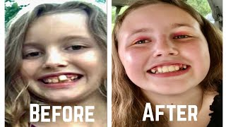 24th Braces Visit || Getting BRACES OFF & Retainers on!
