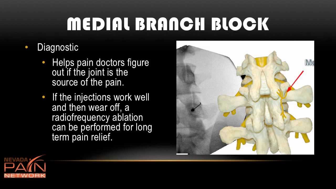 Medial Branch Block Info from a Las Vegas Pain Management Clinic