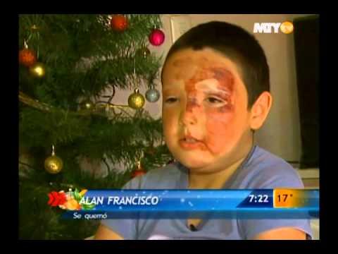 Las Noticias - Se quema niño con cohete, cuenta su historia