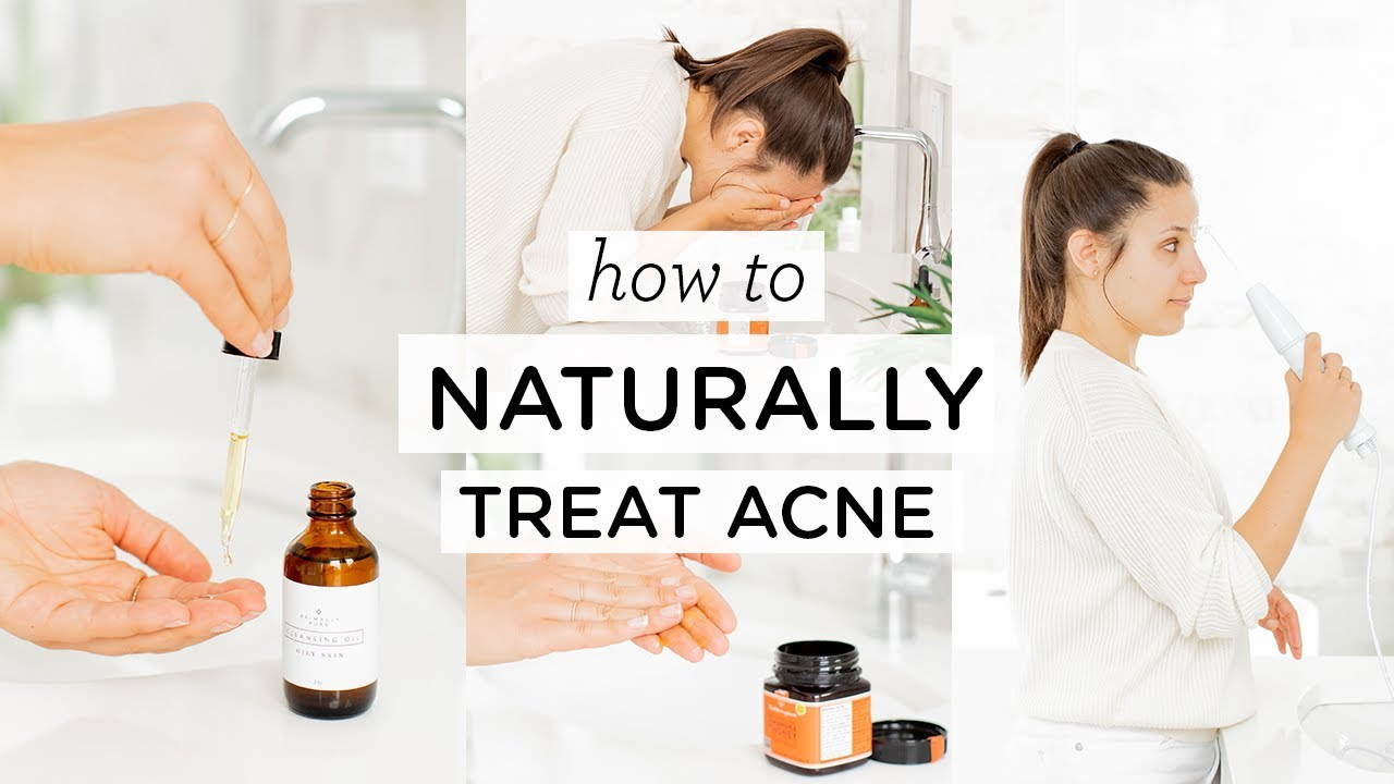 HOW TO GET RID OF ACNE ‣‣ 5 natural acne remedies