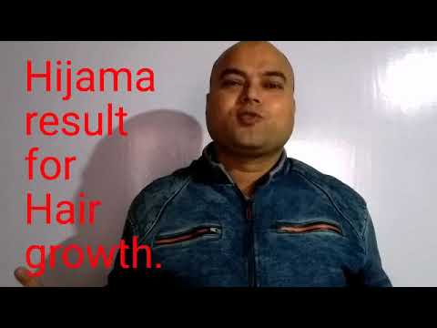 Result of hijama for hair growth and option as treatment of hair fall.