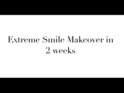 Extreme Smile Makeover in 2 Weeks - Dental Tourism India - Nanda Dental Clinic