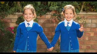 Miraculous story of conjoined twins defeating the odds HD