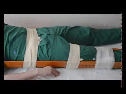 транспортная иммобилизация при переломе костей таза