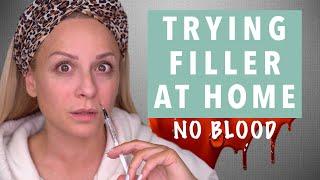 Δοκιμάζω Filler υαλουρονικού μόνη μου! | Gina