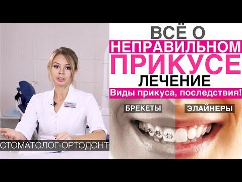 Все о неправильном прикусе - виды, исправление неправильного прикуса, кривых зубов капами, брекетами