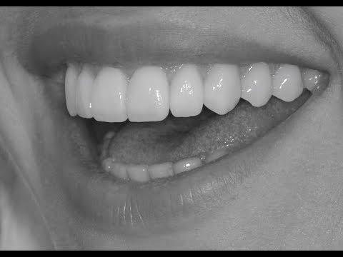 Настоящий результат в стоматологии 2. Ответы на вопросы