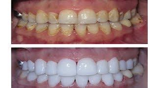 Comment blanchir les dents en 1 semaine