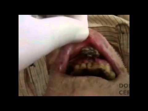 video de hombre con gusanos en la boca