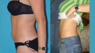 Plastic Surgeon on Lipo (Recomended) Thumbnail