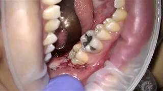 Extraction impacted third molar - Ariel Savion