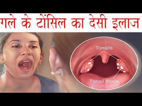 गले में टोन्सिल का 100% असरदार घरेलु देसी इलाज Gale Ke Tonsil Ka Gharelu Upay