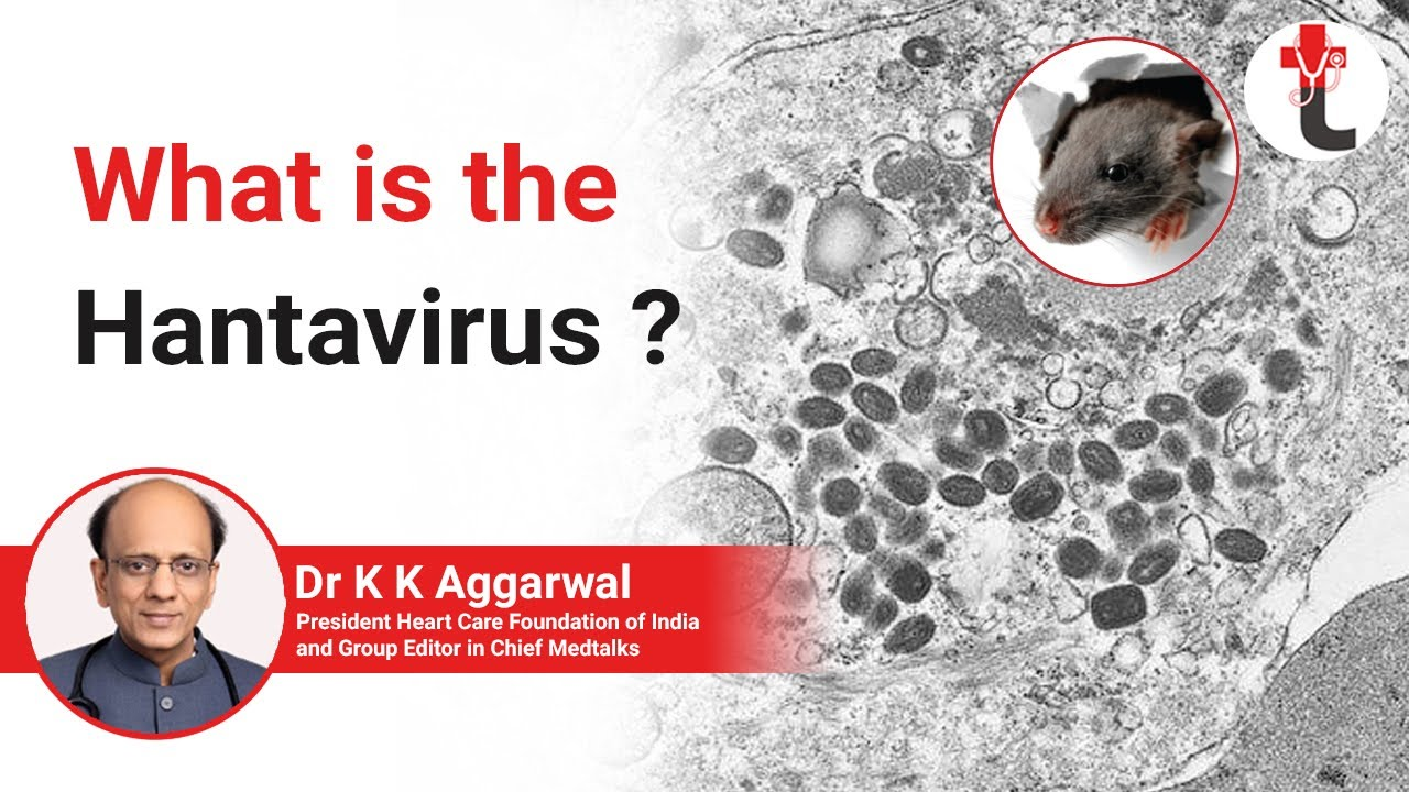 How common is Hantavirus ? Symptoms and Causes