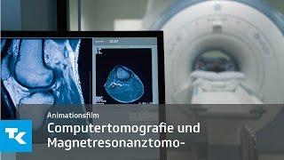 Schicht für Schicht: Animationsfilm zur Computertomografie und Magnetresonanztomografie