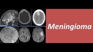 Understanding meningioma.