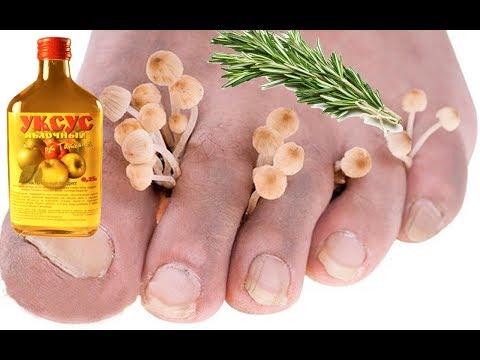 Народное средство от грибка стопы уксусом
