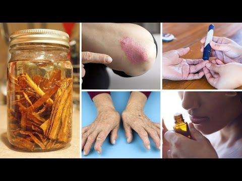 Cinnamon Oil: 5