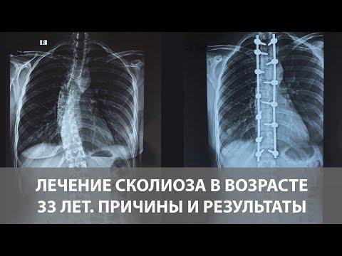 Сколиоз грудного отдела позвоночника - операция в 33 года   Диагностика и лечение сколиоза   Отзыв