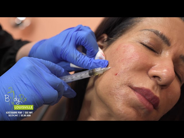 PRP with MICRONEEDLING - Part 1 | BodyRx Louisville