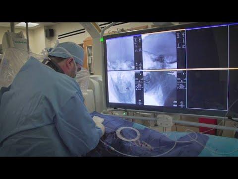Minds of Medicine: Life-saving stroke treatment