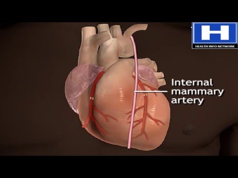 How Does Heart Bypass Surgery Work | Coronary Artery Bypass Graft Procedure Animation | CABG Video