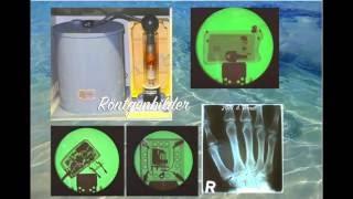 Röntgenbilder (Röntgenstrahlung)