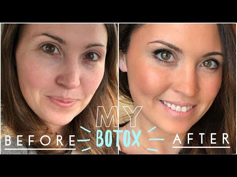 BOTOX: My Before & After Video | Crows Feet & Brow Lift | Ashley Salvatori