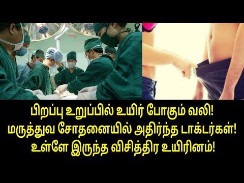 உள்ளே இருந்த விசித்திர உயிரினம்! | Tamil News | Tamil Viral Video | Tamil Breaking News | Tamil