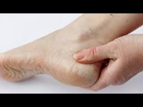 Remedio casero para los talones agrietados con listerine