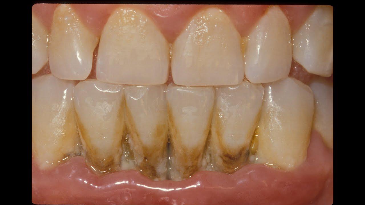 Infecciones de levadura en la boca