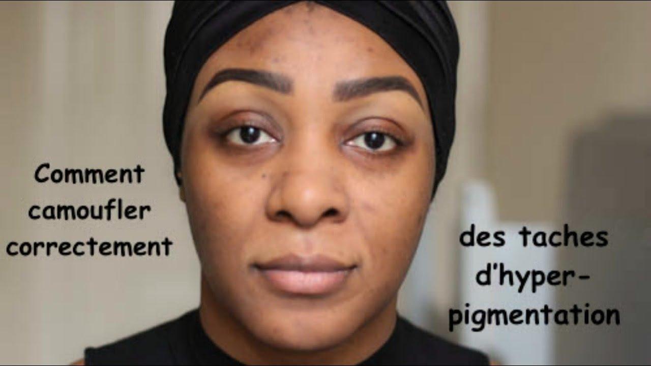 peaux noires taches pigmentaires