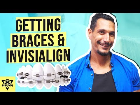 Should You Get Braces Or Invisalign - I've Had Both! My Experience.