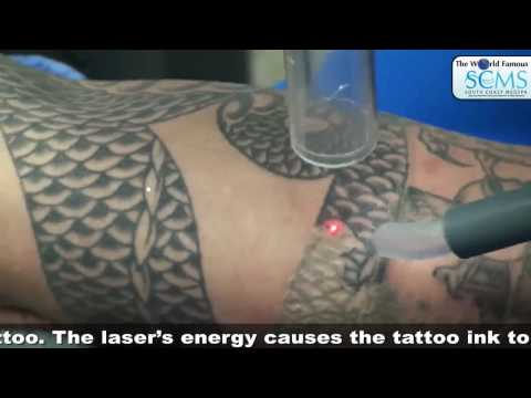 Tattoo Removal Cream Doesnt Work Laser Does