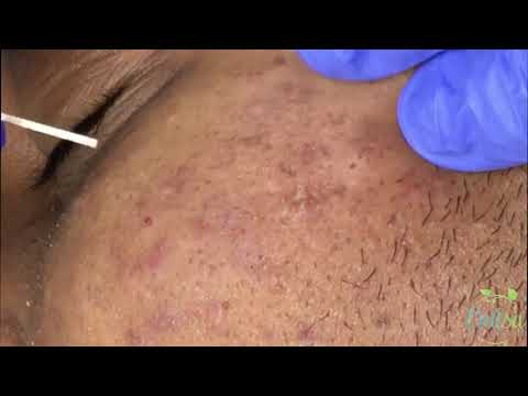 Blackhead Extraction: Ezequiel Part 2