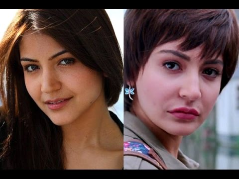ANUSHKA SHARMA BEFORE & AFTER SURGERY!!!