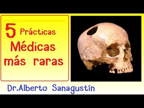 5 Prácticas Médicas Raras 👿 durante la Historia