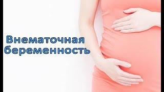 Внематочная беременность. Симптомы и факторы.