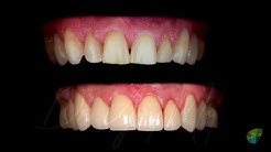 Smile Makeover with 8 Veneers - Top Cosmetic Dentist NY & CT USA | Dr. Yuriy May | Natural Dentistry