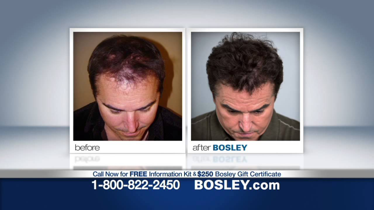 Bosley Hair Transplant Stories Celebrities Nsync Member Joey Fatone And Christopher Knight You